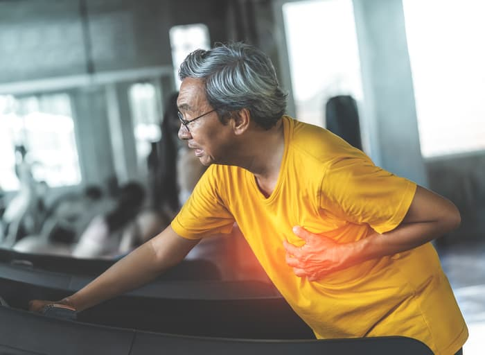 older male is having heart attack while exercising on treadmill